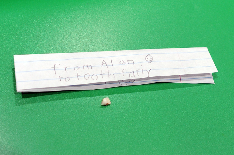 20140115_alan-loses-tooth_005-a.jpg