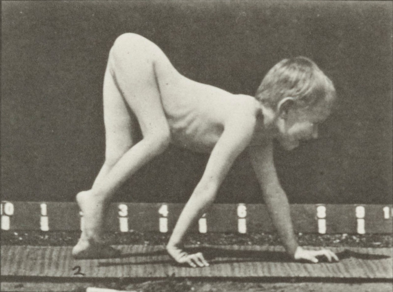 Child with infantile paralysis walking on hands and feet