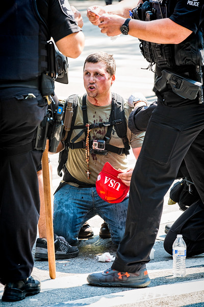 A bloodied Trump supporter with his Trump USA cap is tended to by the police. Police have placed a bandage under the corner of his eye, on the side of his face. His chin was dripping blood, down his neck and all over the front of his shirt and over his GoPro camera.