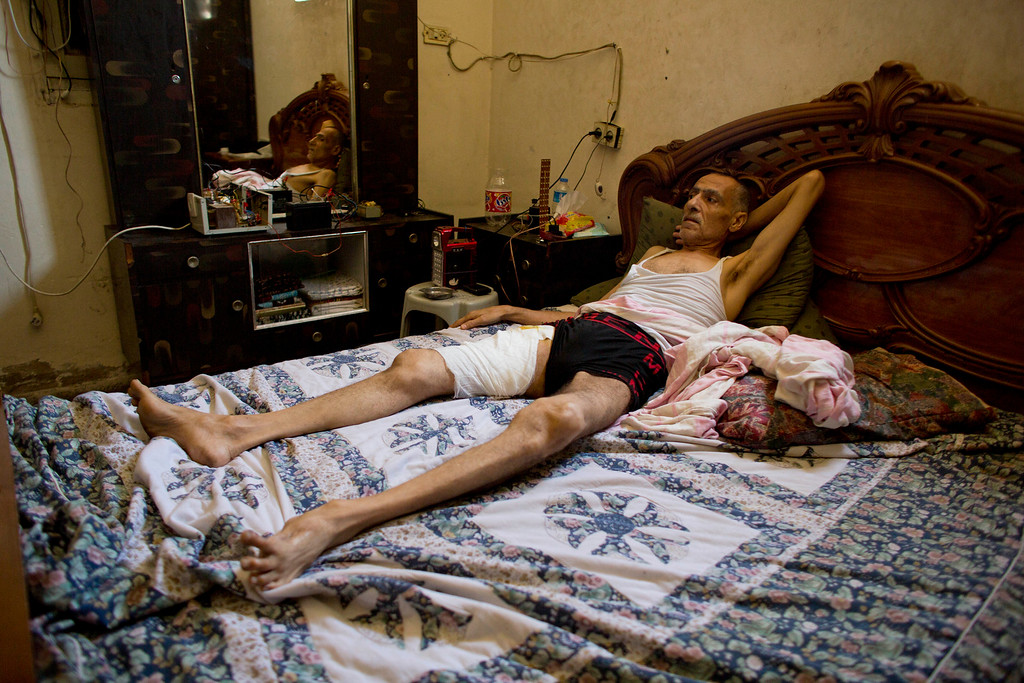 . In this photo made on Thursday Aug. 7, 2014, Jamal Hmaid, 56, recovers at his home in Gaza City.  Jamal was wounded by Israeli air strikes on the Shijaiyah neighborhood on July 30, 2014. More than 9,000 Palestinians, the majority of them civilians and nearly a third among them children, have been wounded in the month long Gaza war. (AP Photo/Dusan Vranic)