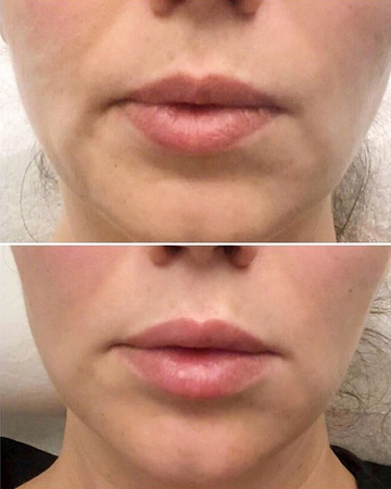HVME Before & Afters