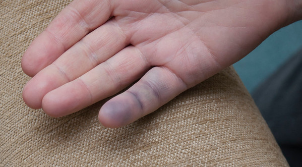 Injured Finger
