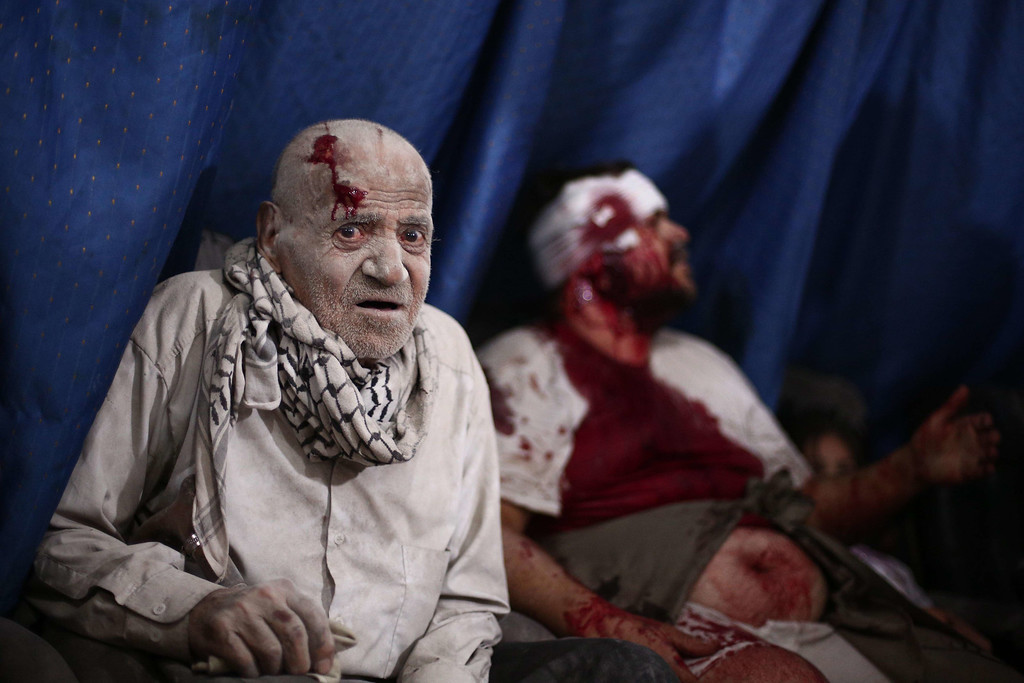 . An injured man looks on as he waits to be treated at a makeshift hospital in the besieged rebel bastion of Douma, northeast of the Syrian capital Damascus, on September 24, 2014, following reported airstrikes by government forces. ABD DOUMANY/AFP/Getty Images