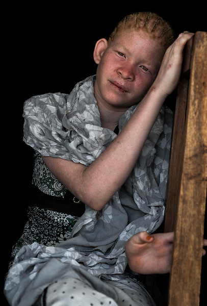 Albinism is a disorder marked by an absence of pigment in the skin, hair and eyes. Tanzania has one of the highest albinism rates in the world, and people with albinism are targeted in heinous attacks motivated by superstition. They are thought to be ghosts or haunted beings.  Tanzania, 2019