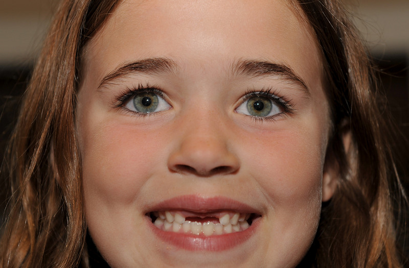 WHERE DID THOSE TWO FRONT TEETH GO:)