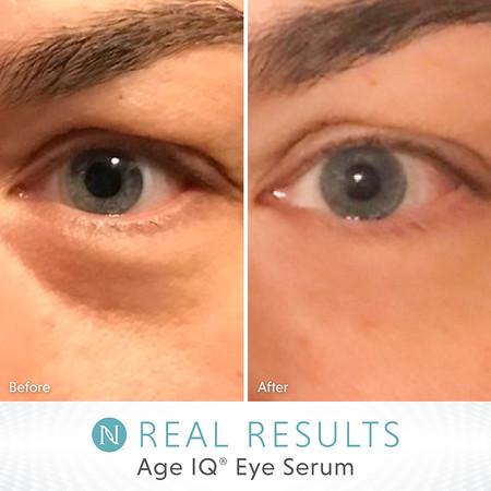 Age IQ Eye Serum