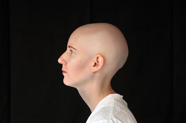 Alopecia Awareness Page