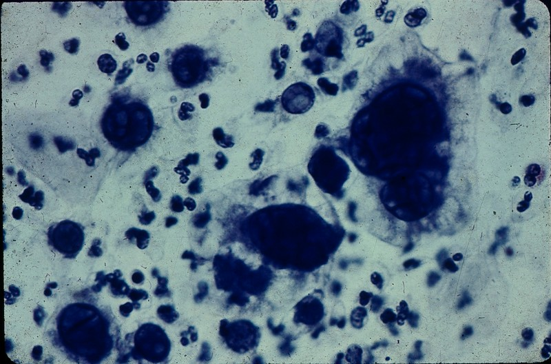 1967 Sally's pathology slides - herpes.jpg