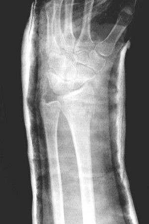 Mary's Wrist 2006