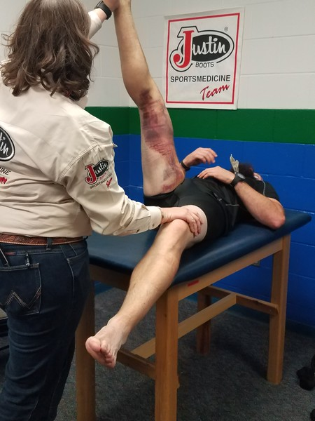 Hamstring Injury on a Rodeo Athlete.jpg