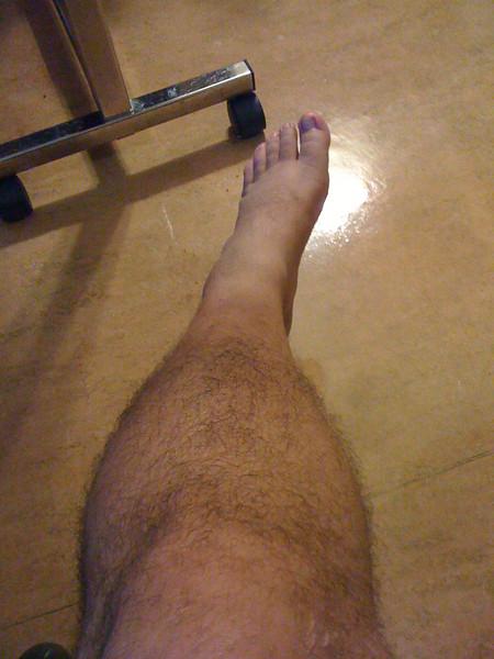 2009 07 09 - Rehab - My good leg