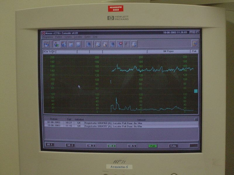 They run Micro$oft...!!! OMG! :shock:  The top line is the heart beat, the bottom shows labour contractions - not very heavy as I had no clue I was having them ;-)