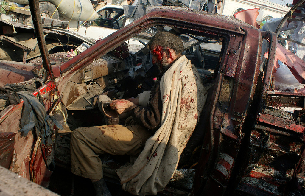. In this Jan. 10, 2012 file photo, a man injured in a bomb blast puts on a shoe before being taken to the hospital in the Khyber region, near Peshawar, Pakistan. A bomb targeting a tribal militia opposed to the Pakistani Taliban exploded in a market close to the Afghan border, killing dozens of people in the deadliest blast in the country in several months. (AP Photo/Qazi Rauf, File)