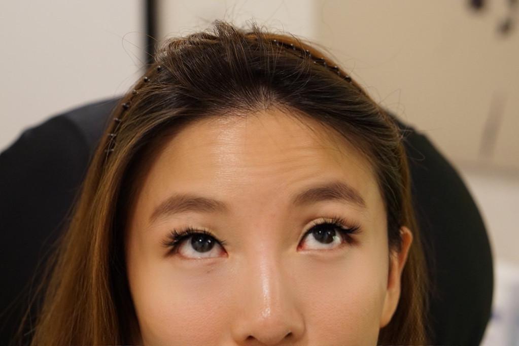 forehead lines, botox