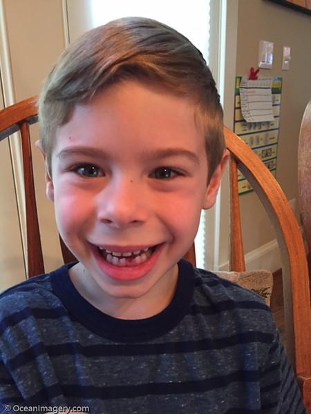 20160427 Arlington, VA. - Dylan's First Lost Tooth
