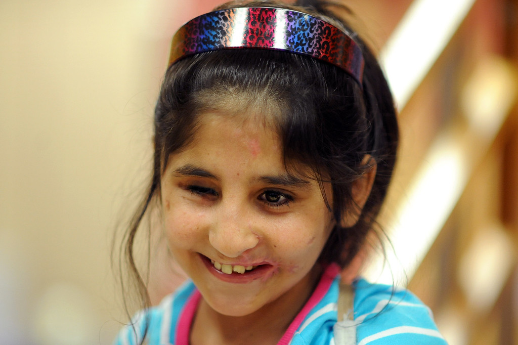 . Shah Bibi, 7, lets out a smile during an appointment at the Shriners Hospital for Children in Los Angeles, CA April 2, 2014.  Bibi lost most of her right arm and the use of an eye after picking up a hand grenade.  She was brought to Southern California for medical treatment in December by the Children of War Foundation and is set to return to her remote Afghani village next week.(Andy Holzman/Los Angeles Daily News)