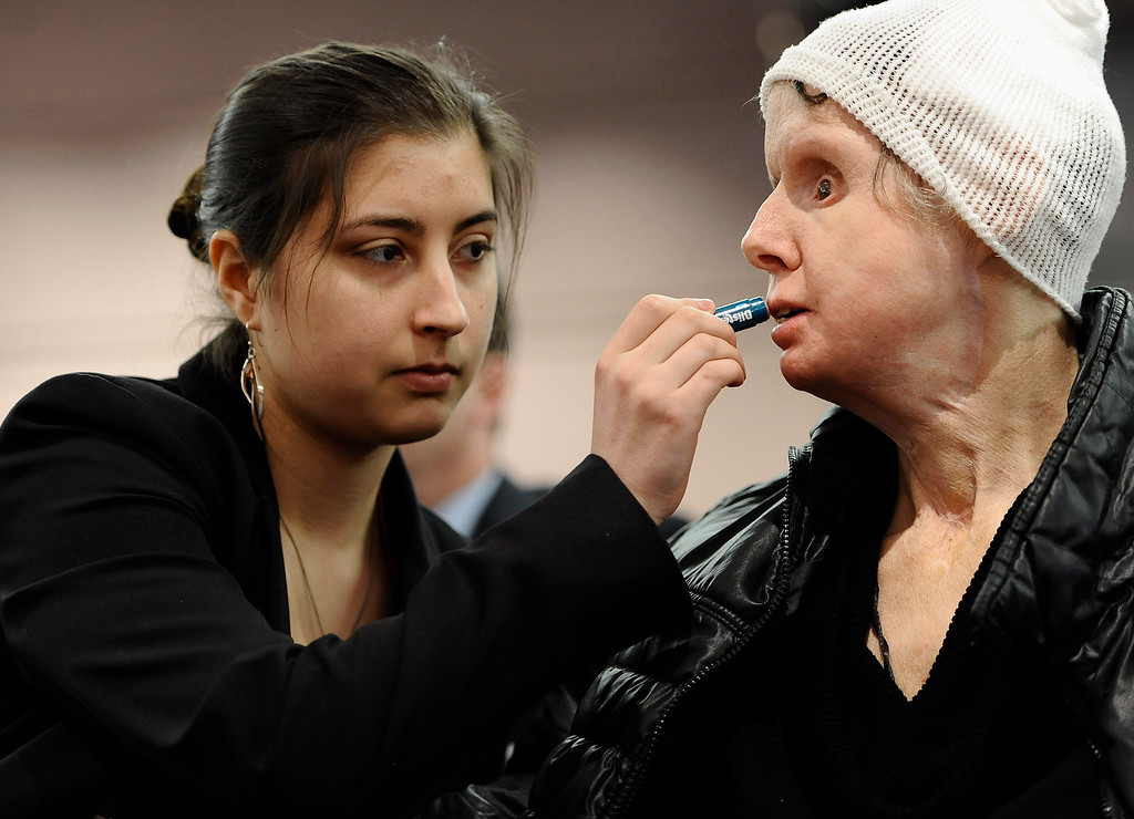 . Briana Nash, left, helps her mother Charla Nash, apply lip balm before speaking to Connecticut legislators at a public hearing at the Legislative Office Building, Friday, March 21, 2014, in Hartford, Conn. Nash was mauled by a friend\'s chimpanzee in 2009.  (AP Photo/Jessica Hill, File)