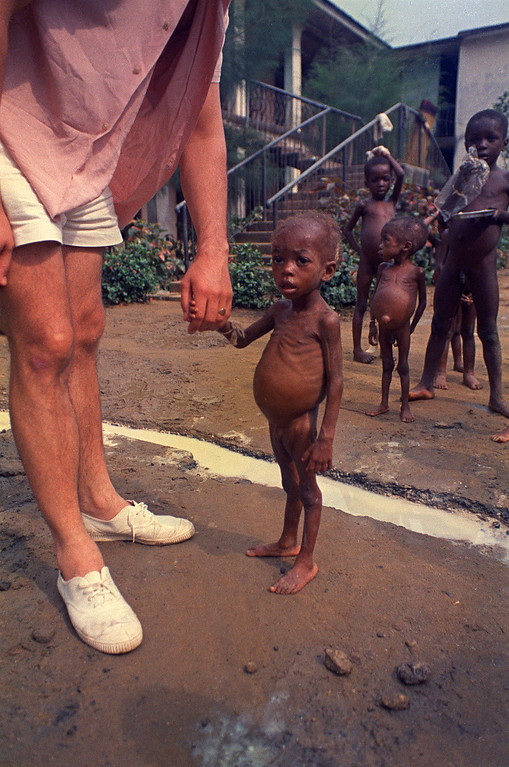 . Les Archer, a British construction worker, holds the hand of a starving refugee child, one of an estimated 600 Ibo children at the tiny Niger Maternity Home in Port Harcourt, in the former Biafran territory of eastern Nigeria, Jan. 22, 1970. (AP Photo/Dennis Lee Royle)