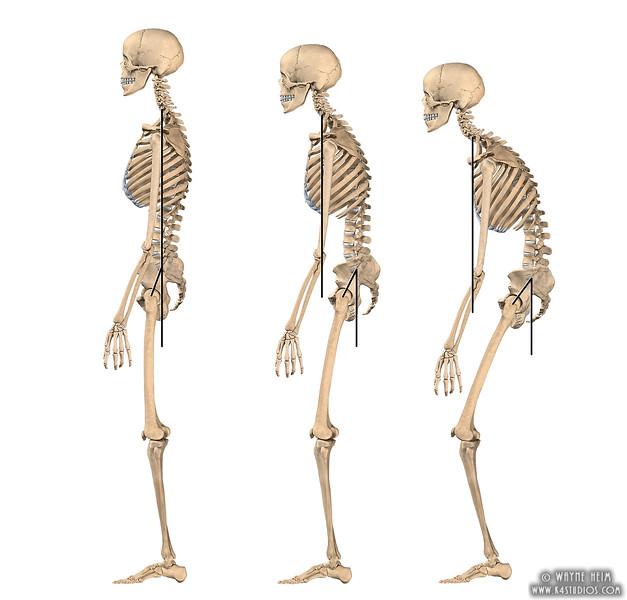 Skeletons v4.jpg