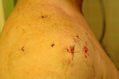 Gary's surgery