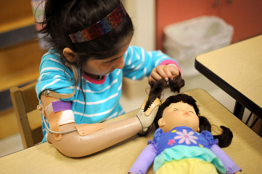 . Shah Bibi, 7, of Afghanistan braids the hair on a doll during an occupational therapy appointment at Shriners Hospital for Children in Los Angeles, CA April 2, 2014.  Bibi lost most of her right arm and the use of an eye after picking up a hand grenade.  She was brought to Southern California for medical treatment in December by the Children of War Foundation and is set to return to her remote Afghani village next week.(Andy Holzman/Los Angeles Daily News)