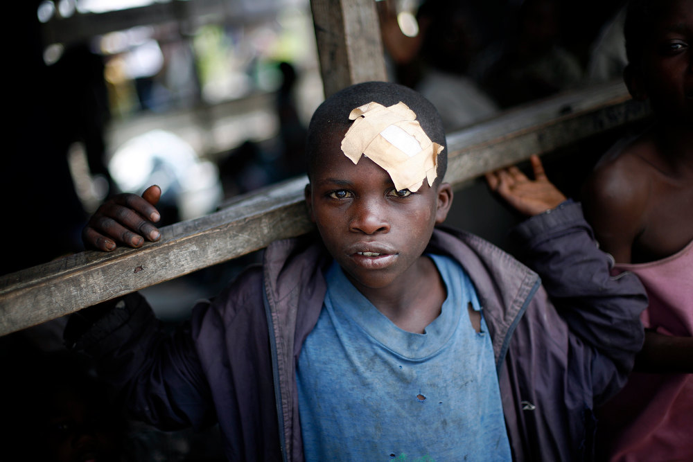 . An internally displaced Congolese  boy waits for food to be distributed by WFP at the Mugunga 3 camp outside the eastern Congolese town of Goma Sunday Dec. 2, 2012. Rebels say they will take back Congo\'s city of Goma if the government does not agree to negotiate with them by Monday. The M23 rebels completed their withdrawal of the eastern Congo city on Saturday, in compliance with an agreement reached between the rebel group and a regional body. (AP Photo/Jerome Delay)