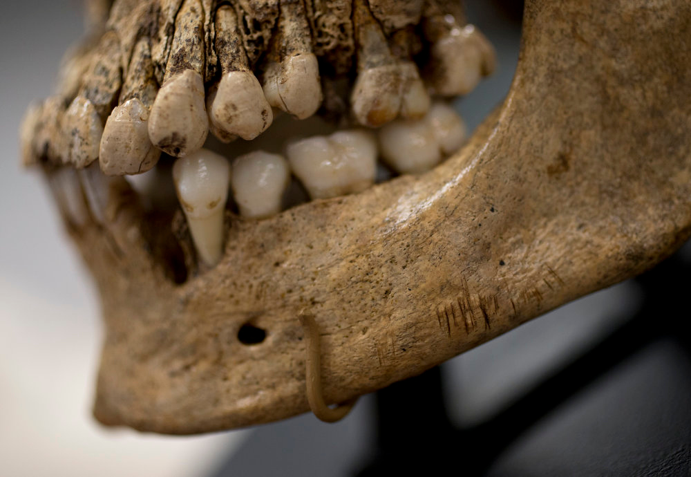 """. Numerous small knife cuts and punctures in the mandible of  \""""Jane of Jamestown\"""" are seen during a news conference at the Smithsonian\'s National Museum of Natural History in Washington, Wednesday, May 1, 2013. Scientists announced during the news conference that they have found the first solid archaeological evidence that some of the earliest American colonists at Jamestown, Va., survived harsh conditions by turning to cannibalism presenting the discovery of the bones of a 14-year-old girl, \""""Jane\"""" that show clear signs that she was cannibalized. (AP Photo/Carolyn Kaster)"""