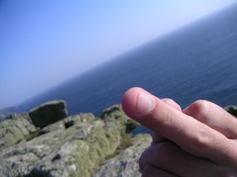 25 Ben's Finger.JPG
