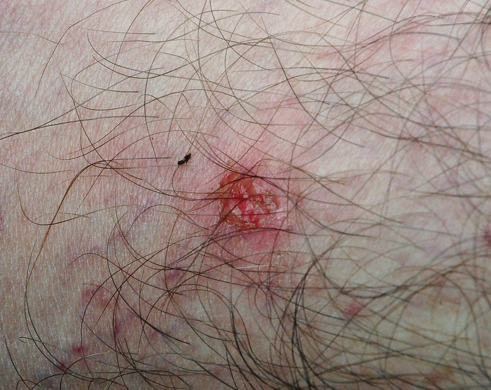 . The day-old, post-scratch wound of a black fly bite -- as well as a smushed carcass of a black fly, decorate Orrick\'s leg. Impervious to repellants and sucking blood without causing pain, black flies aren\'t generally annoying to people until hours or days later, when they itch intensely. Orrick and Safranski were still scratching their bites nearly a week after leaving Woodland Caribou Provincial Park.