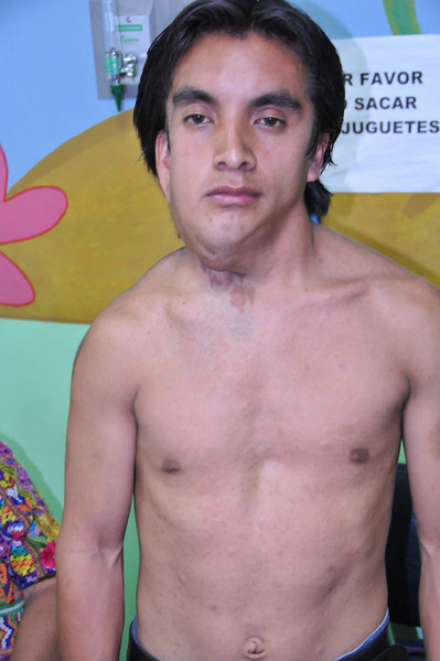 Case 65:  Luiz Mario Federico.  Neurofibroma (Elephant Man Disease).  Refer to U.S.
