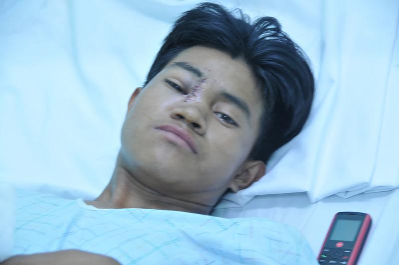 Julio after Rhinoplasty