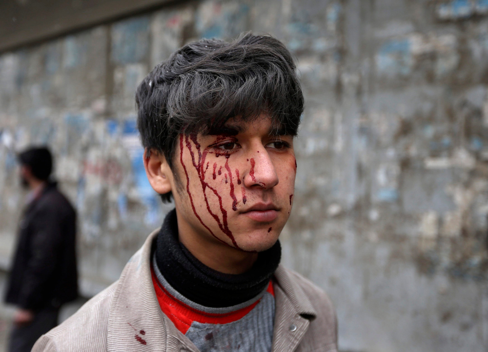 Description of . A wounded Afghan boy is seen with blood on his face at the site of a car bomb attack in Kabul January 16, 2013. A car bomb exploded in front of the gates of the Afghan intelligence agency on Wednesday, Reuters witnesses said, near heavily barricaded government buildings and Western embassies. REUTERS/Omar Sobhani