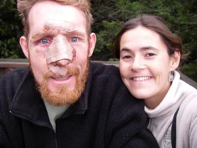 Steve's Facial Injuries (WARNING - GROSS) - December 10, 2007
