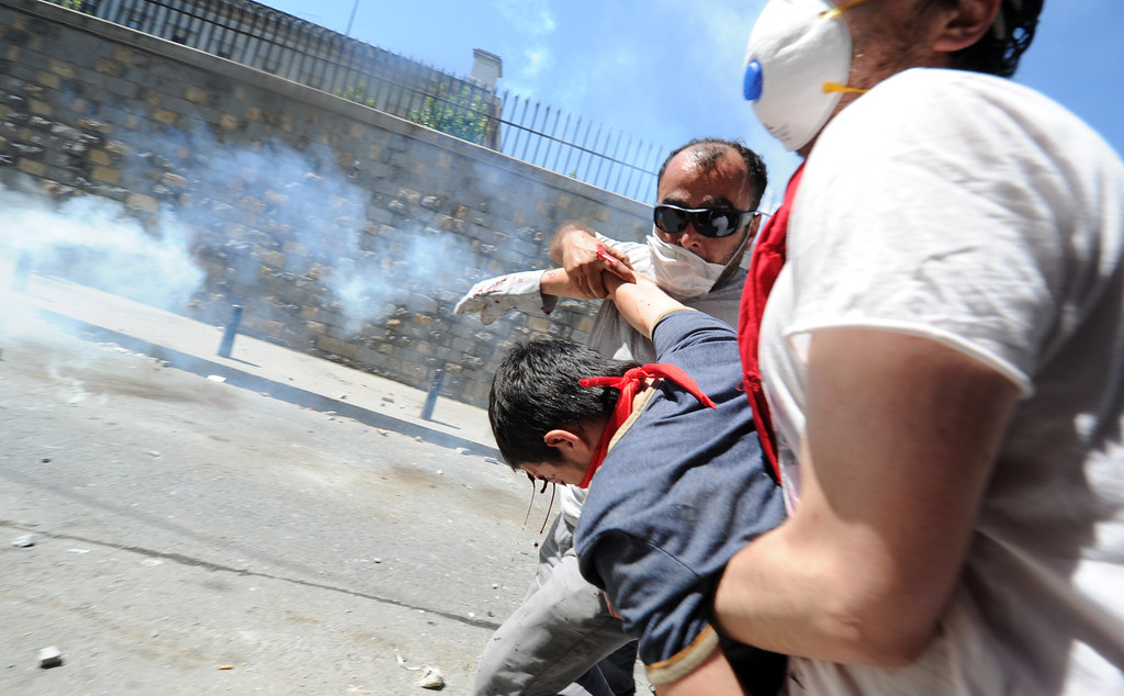 . A bleeding protestor is assisted as demonstrators clash with riot police on June 1, 2013, during a protest against the demolition of Taksim Gezi Park, in Taksim Square in Istanbul. Turkey police on June 1 began pulling out of Istanbul\'s iconic Taksim Square, the scene of a second day of violent clashes between protesters and police over a controversial development project.  BULENT KILIC/AFP/Getty Images