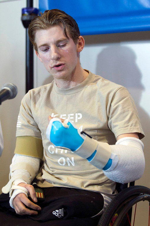 . U.S. Army Sgt. Brendan Marrocco of Staten Island, New York, who lost his four limbs in a 2009 roadside bomb attack in Iraq, speaks during a news conference after receiving double arm transplants, performed by a Hopkins medical team at The John Hopkins Hospital, in Baltimore, Maryland January 29, 2013. REUTERS/Jose Luis Magana