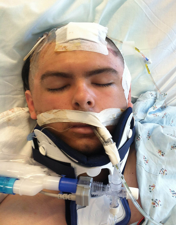 . Everett Zamarron-Smith at  Santa Clara Valley Medical Center on June 5th, 2012, right after his accident. (Photo courtesy of the Zamarron family)