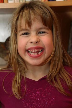 Nicole's Teeth