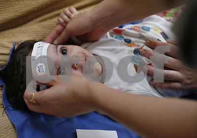 cdc-3-babies-with-zikalinked-birth-defects-born-in-us