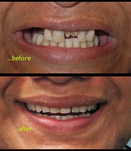 WelcomeSmile & Dental