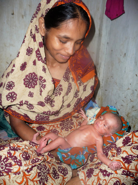 sadly, the baby died just over a week after this picture was taken