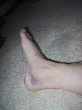 Steph's Broken Ankle 2005