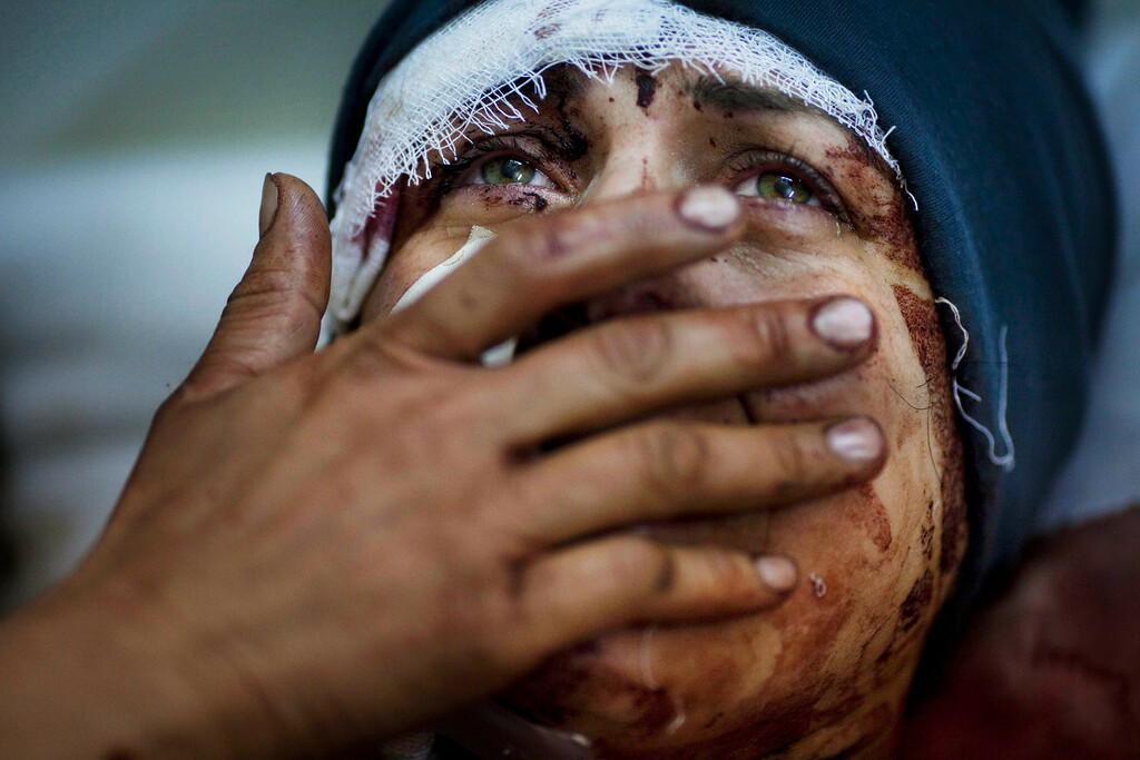 . FILE - Aida cries as she recovers from severe injuries after the Syrian Army shelled her house in Idlib, north Syria, Saturday, March 10, 2012. Aida\'s husband and two of her children were killed after their home was shelled. (AP Photo/Rodrigo Abd, File)