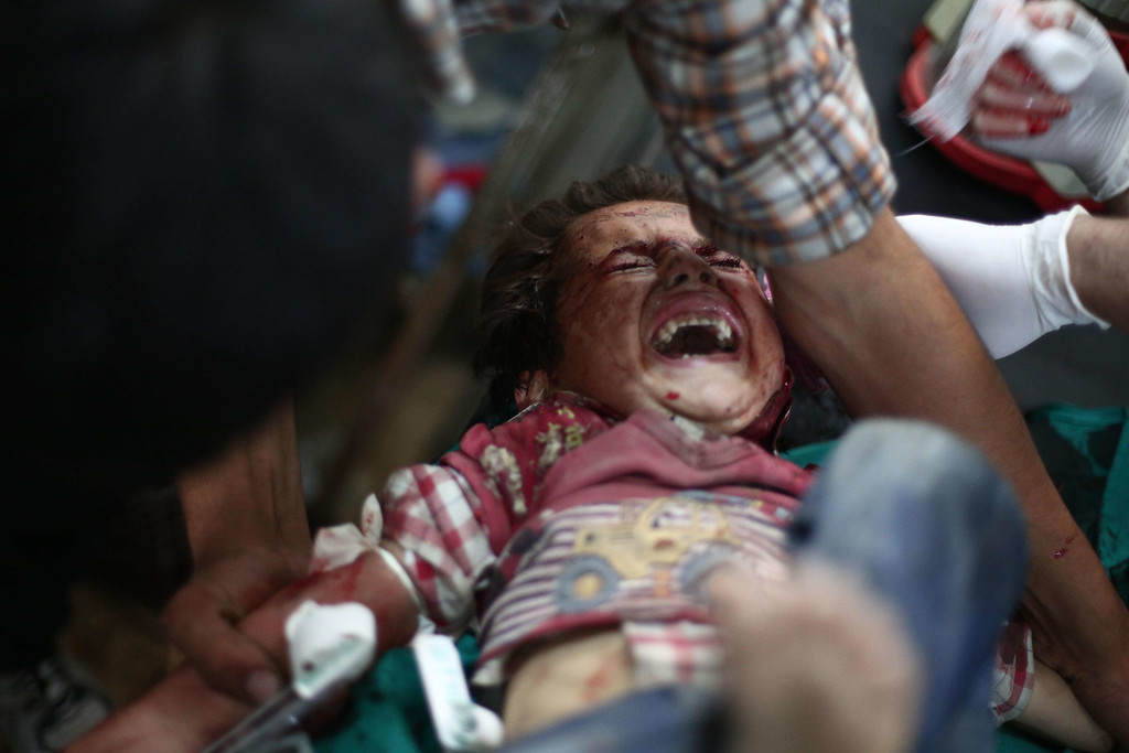 . An injured girl reacts as she is being treated at a makeshift hospital in the besieged rebel bastion of Douma, northeast of the Syrian capital Damascus, on September 24, 2014, following reported airstrikes by government forces. ABD DOUMANY/AFP/Getty Images