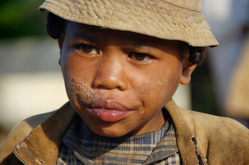 Children from Madagascar20 Oda.jpg