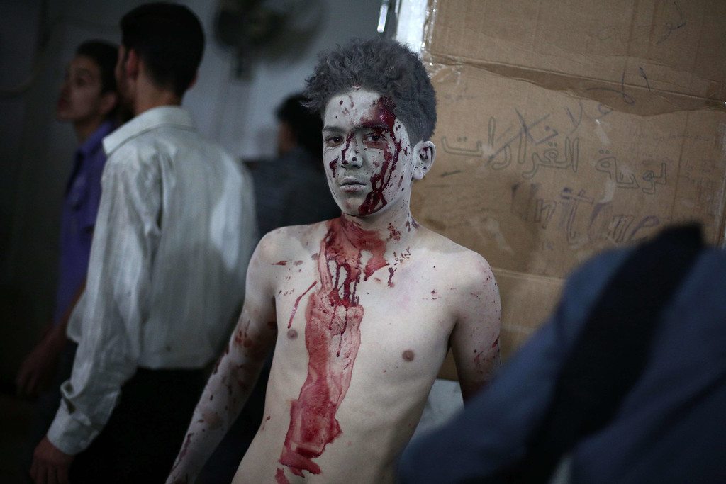 . An injured boy looks on as he is being treated at a makeshift hospital in the besieged rebel bastion of Douma, northeast of the Syrian capital Damascus, on September 24, 2014, following reported airstrikes by government forces. Some 191,000 people have been killed since an uprising against President Bashar al-Assad\'s rule erupted in March 2011. AFP PHOTO/ ABD DOUMANY/AFP/Getty Images