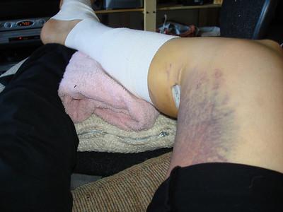 Days after my leg surgery