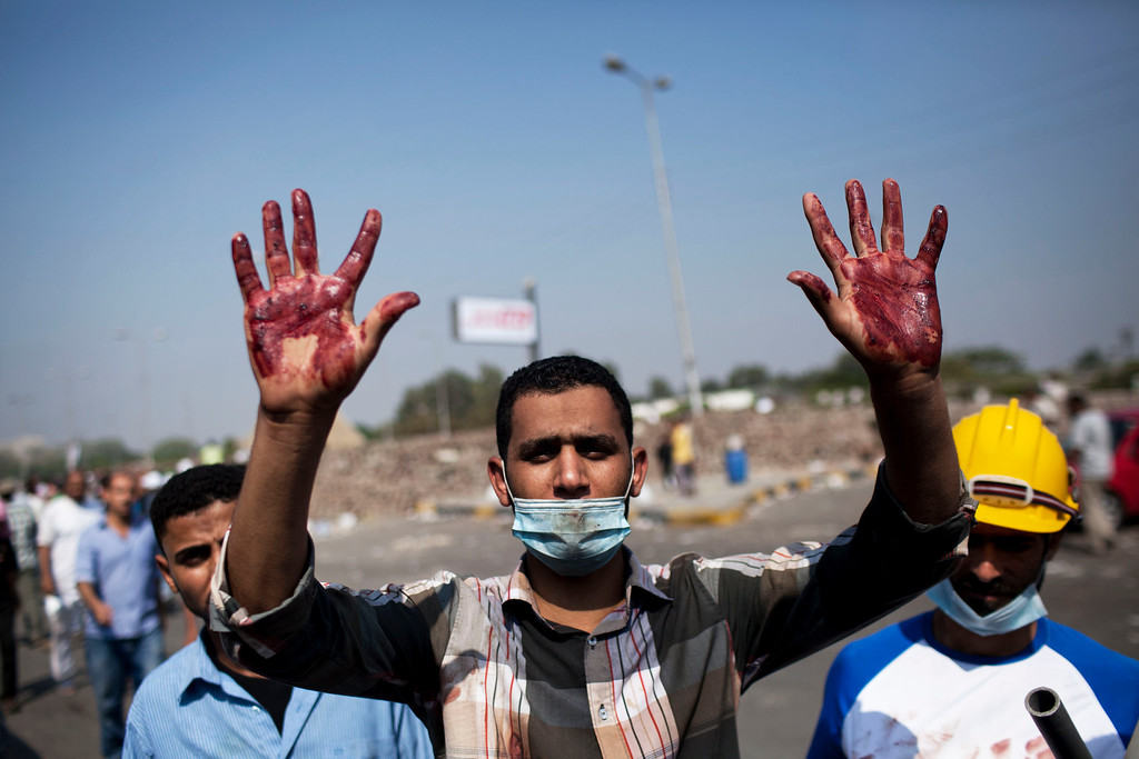 . A supporter of Egypt\'s ousted President Mohammed Morsi shows his bloody hands after clashes with security forces at Nasr City, near where pro-Morsi protesters have held a weeks-long sit-in, in Cairo, Egypt, Saturday, July 27, 2013. Overnight clashes between security forces and supporters of ousted Egyptian President Mohammed Morsi in east Cairo left scores of protesters dead and hundreds injured following a day of massive pro-military rallies backing a tough hand against Morsiís backers and the Muslim Brotherhood group from which he hails. (AP Photo/Manu Brabo)