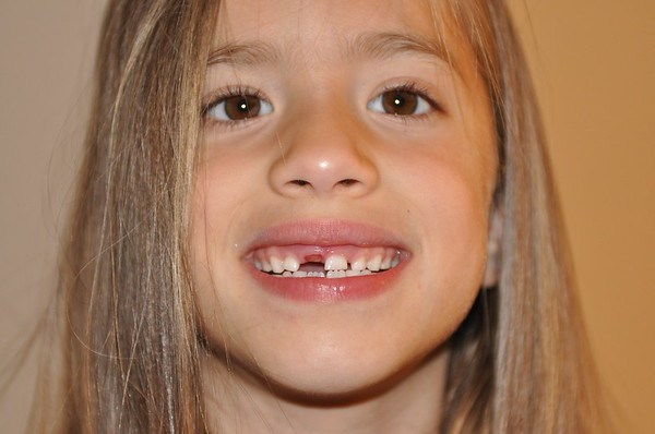 2015 CC lost her first tooth