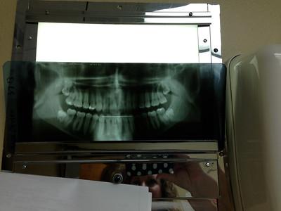 Max's wisdom teeth