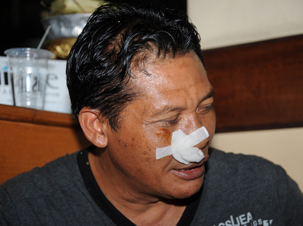 . An injured passenger from the Lion Air plane that missed the runway at Bali\'s international airport is pictured at hospital as people arrive for treatment in Kedongan near Denpasar on Bali island on April 13, 2013. A Boeing passenger jet operated by budget airline Lion Air -- which recently sealed blockbuster orders for new planes -- missed the runway at Bali airport and landed in the sea but everybody on board survived. SONNY TUMBELAKA/AFP/Getty Images